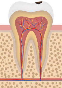early tooth decay