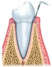 healthy gums dental society