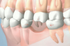3 drifting teeth